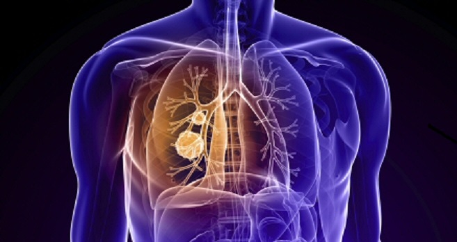 Lung Cancer:Anatomy & Oncology - Live webinar